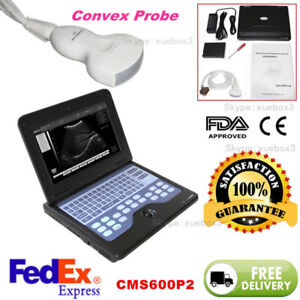 Newest Portable B ultrasound Scanner Laptop Diagnostic Systems Convex Probe Ce