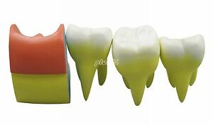 Dental Model Caries Demonstration Teeth Model 4pcs Red And Green G149 Pt