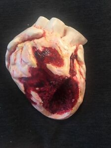 Vintage Heart Attack Pathology Anatomical Cardiac Model