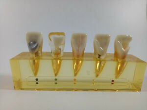 5 Pieces Dental Study Model For Endodontic Treatment Incisor Teeth Teach Model