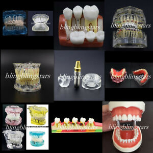 27 Types Dental Teeth Model Implant Restoration Disease Pathological Study Model