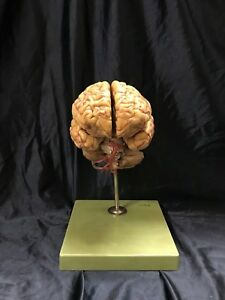 Vintage Somso Bs23 1 Brain Model With Arteries 9 Parts Anatomical Model