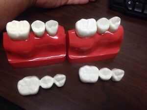Lot Of 2 Dental Crown And Bridge Models With Implants