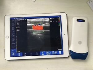 Wifi Ultrasound Color Doppler 7 5 Mhz Discounted Special