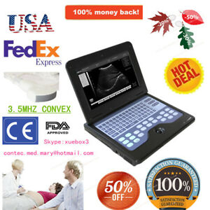 Portable Laptop Machine Digital Ultrasound Scanner 3 5 Convex Probe Human Use