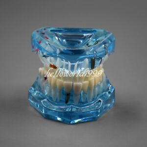 Dental Restoration Typodont Teeth Teaching Model With Implant Demonstration Blue