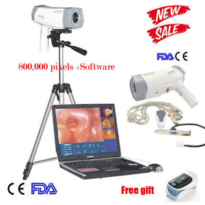 Medical Gynaecology Video Electronic Colposcope Electronic Sony Image Tripod Ce