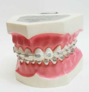 Vintage Kilgore Dental Study Model With Braces Tr 14