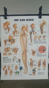 Vtg 1986 Hip And Knee Anatomical Chart By Anatomical Chart Co