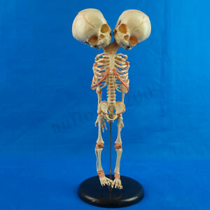 Double Head Infant Baby Skull Skeleton Research Model Anatomical Brain Anatomy