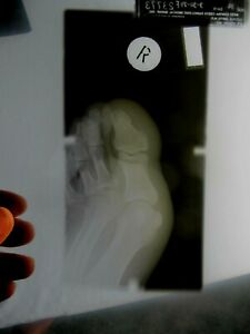 X Ray Film Exposed Human Foot