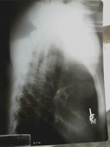 X Ray Film Exposed Human Chest 90s