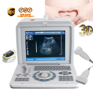 Factory portable Laptop Ultrasound Scanner Diagnostic Machine Convex Probe 3d