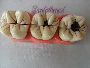 1 Set 4 1 Size Dental Caries Removable Teeth Tooth Model Learn Study Model New