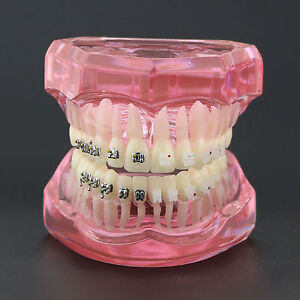 Pink Dental Teeth Study Orthodontic Model With Metal And Ceramic Brackets 3003