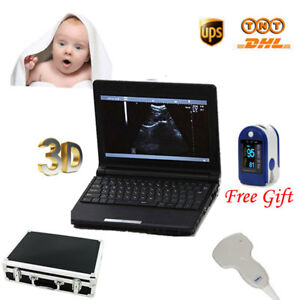 Laptop Ultrasound Scanner Diagnostic Machine Convex Probe 3d Free Shipping