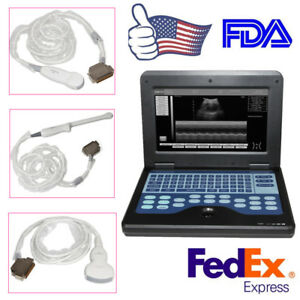 Digital Portable Laptop Ultrasound Scanner convex micro convex transvaginal Fda