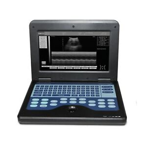 Full Digital Ultrasound Scanner Laptop Machine 3 5 Convex 7 5 Linear 2 Probes