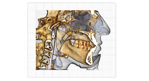 Invivo5 Dental Imaging Software Licence With Resale Authorized By Anatomage
