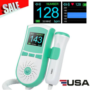 New Sale Prenatal Baby Sound Lcd Display Fetal Doppler 3mhz Prenatal Monitor Gel