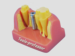 Dental Teeth Implant Model With Bridge And Implant Removable