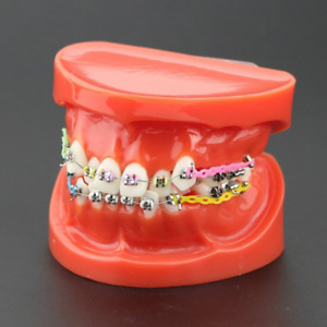 Dental Orthodontic Teeth Study Model 3005 Red With Brackets Chain Ties Arch Wire