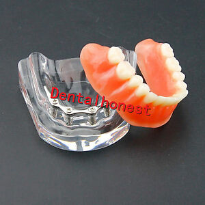 Dental Precision Overdenture Implant Teeth Model 6009 Inferior Lower Jaw Silver