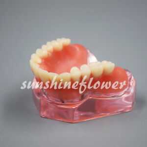 Dental Overdenture Study Model Superior With 4 Implants Demo Model 6001 Pink