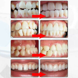 Lots Tooth Orthodontic Appliance Alignment Braces Oral Hygiene Dental Teeth Care