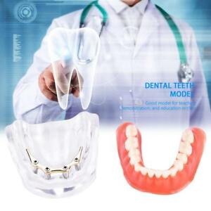 Dental Teeth Study Model Overdenture Teeth Inferior Precision Implant Demo Us
