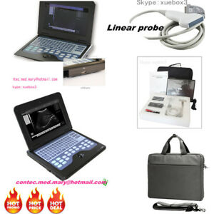 Contec Ultrasound Scanner Portable Laptop Machine Linear Probe 7 5mhz 3y Warrant