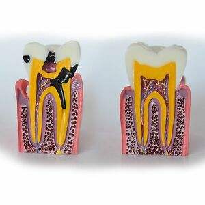 Dental Model 4013 03 Caries Cross section Vertical View Model