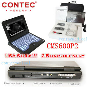 New Portable Cms600p2 Laptop Ultrasound Scanner Machine With 3 5mhz Convex Probe