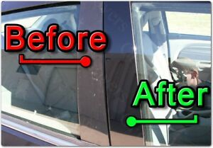 Black Pillar Posts For Hyundai Sonata 15 16 6pc Set Cover Door Trim Window