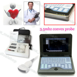 B ultrasound Machine smart Laptop Ultrasound Scaner convex Probe u s Seller
