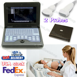B Ultrasound Laptop Full Digital Ultrasound Scanner With 2 Probes Convex linear