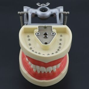 Dental Typodont Kilgore Nissin 200 Compatible Teeth Model With Removable Tooth