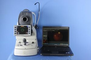 Nidek Afc 230 Auto Fundus Camera With Navis Lite Software And Laptop