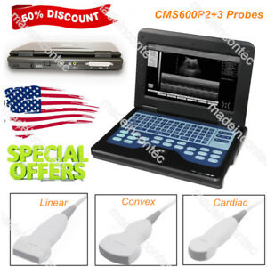 Ce Portable Ultrasound Scanner Laptop Machine 3 Probes Convex linear cardiac Usa