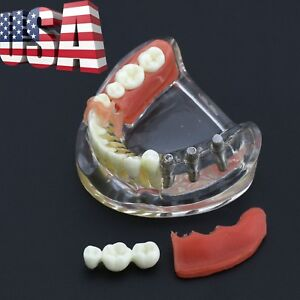 Dental Lower Jaw Implant Restoration Typodont Model With Removable Bridge 6006