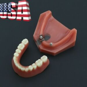 Dental 2 Implants Overdenture Typodont Lower Jaw Cross section Teeth Model 6007
