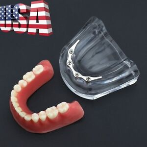 Dental Precision Implant Overdenture Typodont Lower Jaw Teeth Model Silver 6008