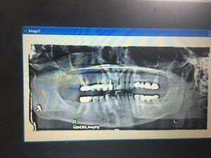 Digital Dental Panoramic Xray Pano X Ray Complete W Computer Software Ny Area