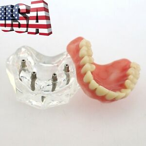 Us Dental Acrylic Implant Overdenture Typodont Demo Teeth Model Upper Jaw 6001c