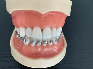 Kilgore Nissin Dental Study Model 200 Typodont Removable Teeth Best Offer