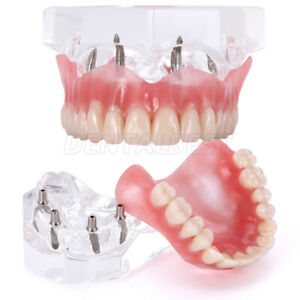 Dental Implant Teeth Model Demo Overdenture Restoration With 4 Implants Upper