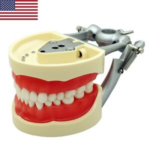 Kilgore Nissin Dental Training Typodont Restoration Model 32 Replacement Teeth