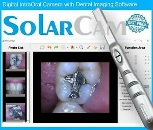 2017 Solarcam 4mp Digital Intraoral Intra Oral Dental Camera Usb Pc 32 64bit