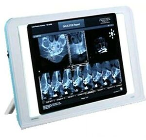 Best Dental X Ray Film Viewer Led Illuminator Wall Desk Mounting View Box Sale