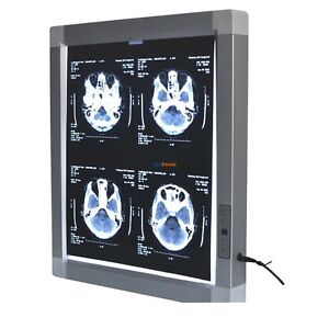 Jindetech X Ray Film Viewer Medical Diagnostic E n t Led Illuminator View Box